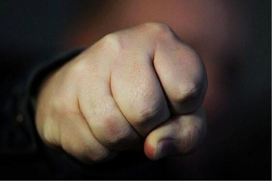 Избитая под Тверью женщина-зооволонтер обратилась в полицию